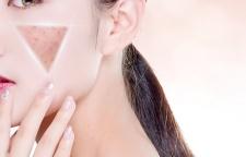 广州整形美容专业培训学校学费,纹、眼角纹—鱼尾纹、下睑纹、鼻背纹、唇纹